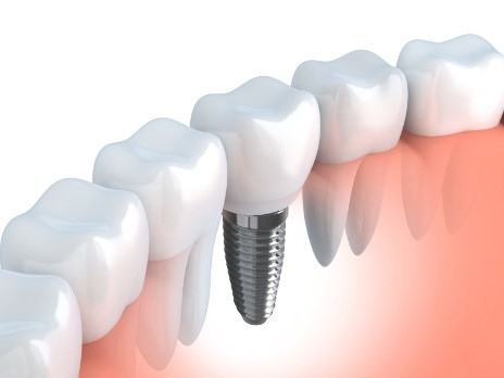 Get a complete smile with dental implants from your dentist in OKC.