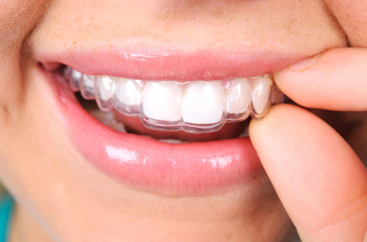 Have you considered discussing Invisalign with your dentist in OKC?