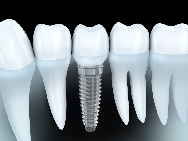 Your dentist in OKC, Dr. Mitchell, allows you to invest in your oral health with dental implants.